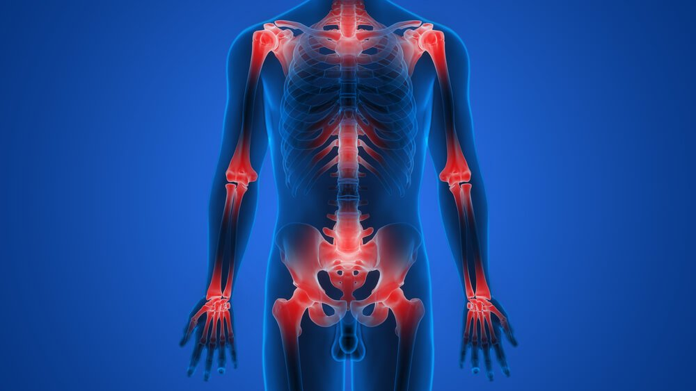 4f41b9c4ed0a Living with osteoarthritis - Physio Roussillon