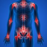 Vivre avec l'arthrose